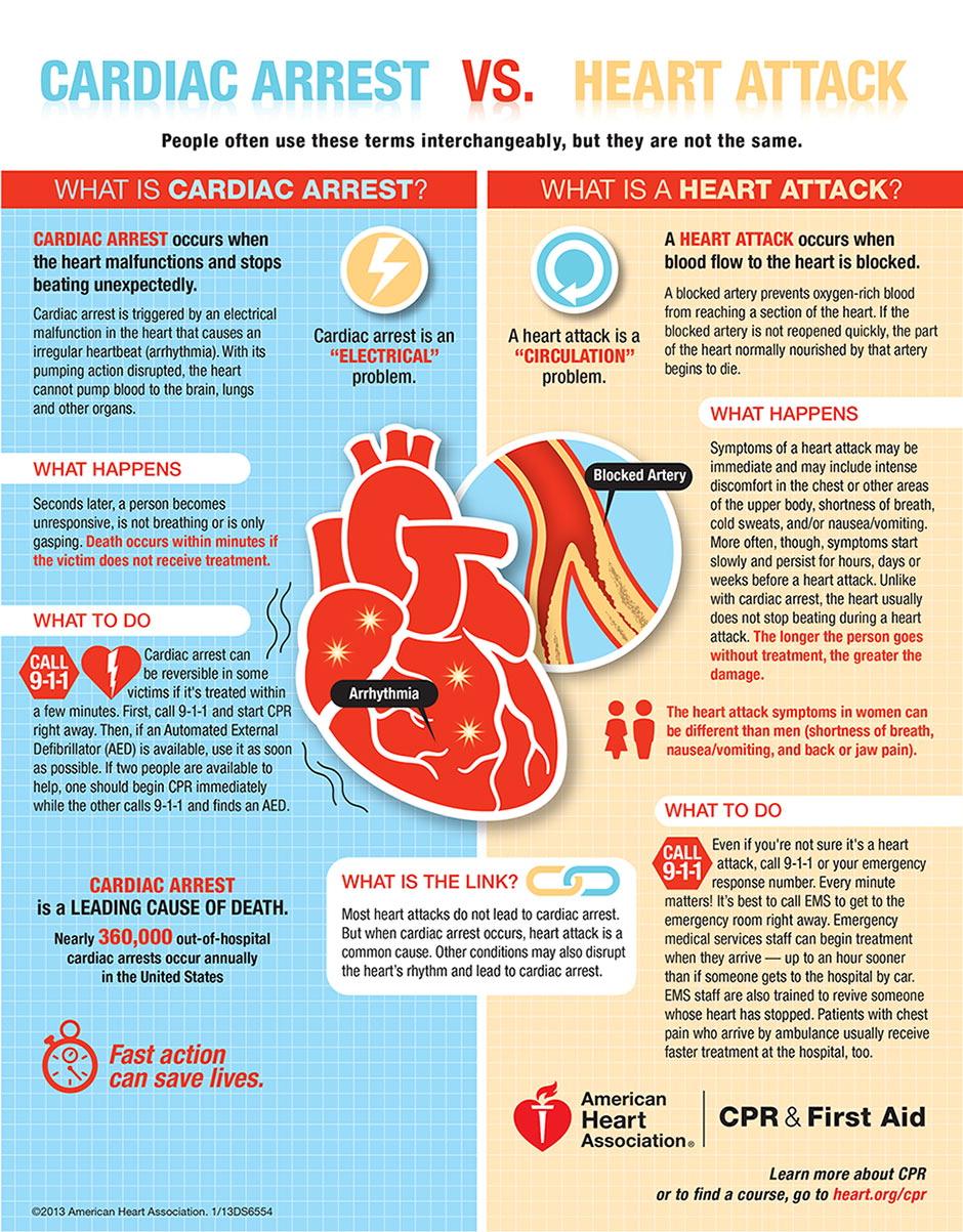 Zawał serca a nagłe zatrzymanie krążenia - zatrzymanie pracy serca