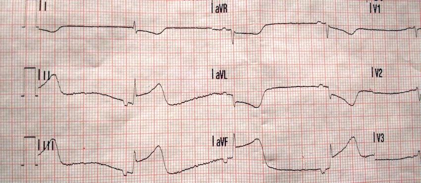 EKG zawał ściany dolnej