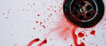 Krwotok z nosa - co robić? Pierwsza pomoc jest prosta!
